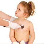 La varicelle